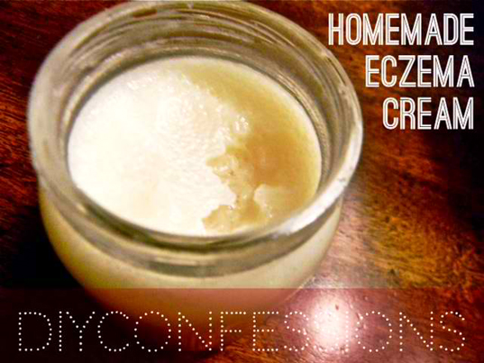 How To Make A Home-Made Eczema Cream And Skin Moisturizer