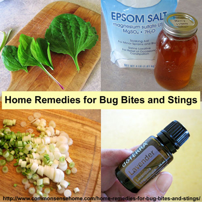 14 Home Remedies For Bug Bites And Stings