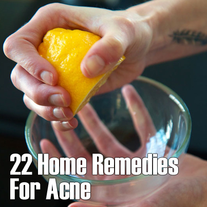 22 home remedies for acne   herbs info