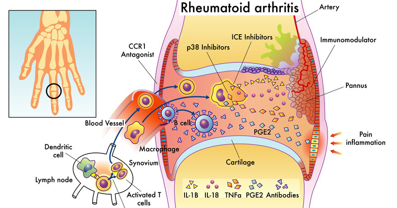 Top 10 Home Remedies For Arthritis - Herbs Info