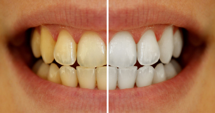 Ways To Whiten Your Yellowish Teeth Naturally