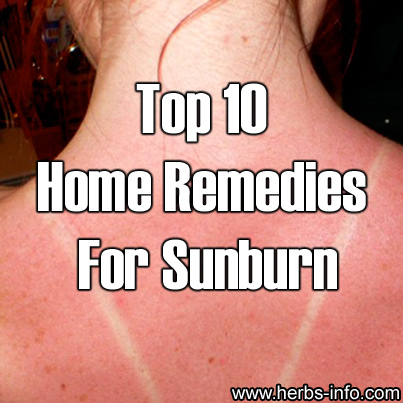 Top 10 Home Remedies For Sunburn