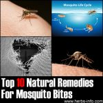 Top 10 Natural Remedies For Mosquito Bites