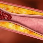4 Silent Signs You May Have Clogged Arteries And The Best Foods To Eat To Prevent It