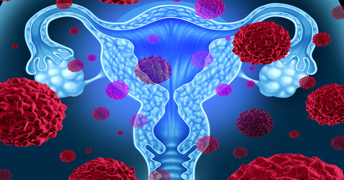 10 Warning Signs Of Cervical Cancer Women Shouldnt Ignore