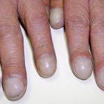 10 Health Warnings Your Fingernails May Be Sending