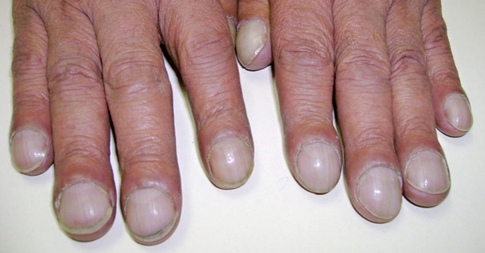 10 Health Warnings Your Fingernails Might Be Sending