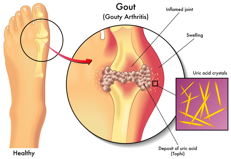 How To Remove Uric Acid Crystallization in Joints