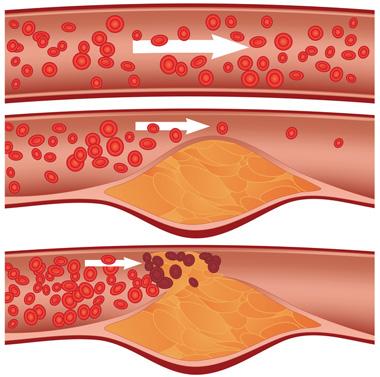 cholesterol-blockage-small