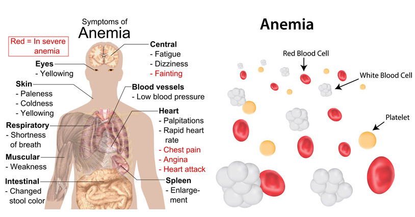 15 Foods To Fight Anemia
