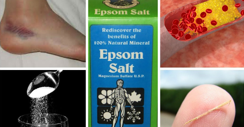 20 Mind Blowing Reasons Why Epsom Salt Should Be In Every Home