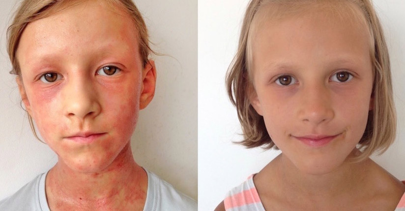 How A Mother Naturally Cured Her Daughter's Eczema