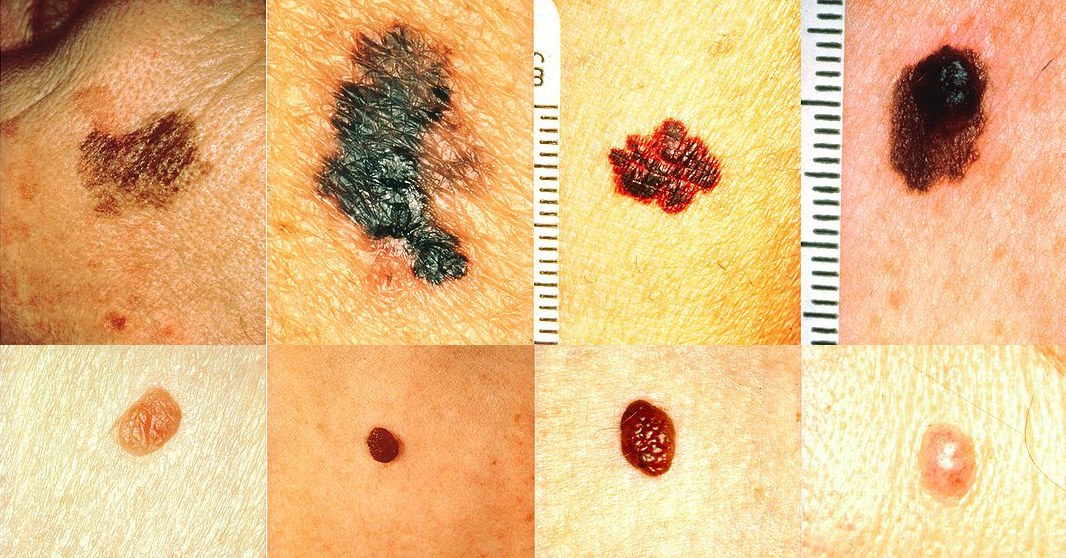 How To Recognize Skin Cancer - This Could Save Your Life