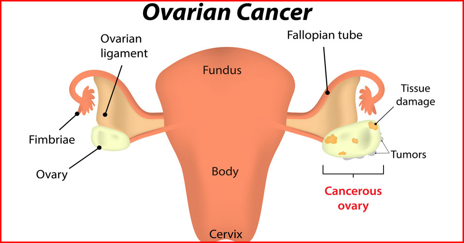 10 Warning Signs of Ovarian Cancer Women Shouldn't Ignore