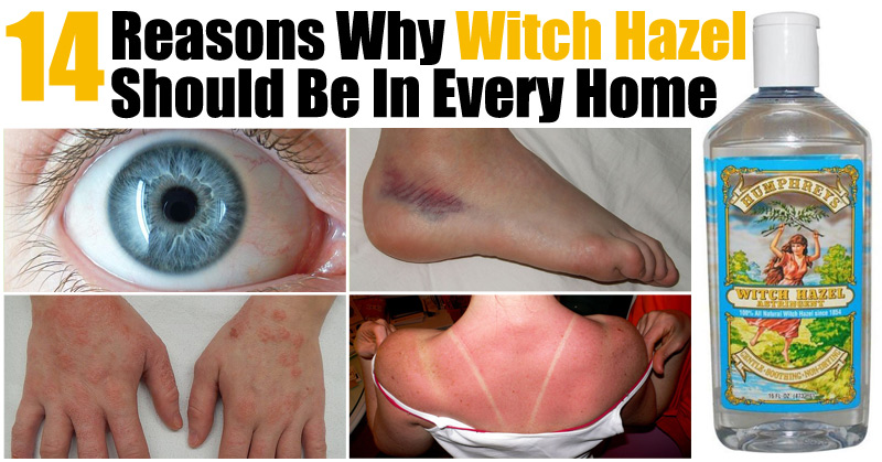 14 Reasons Why Witch Hazel Should Be In Every Home