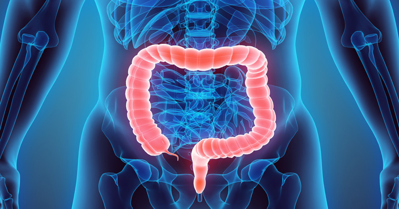 You Could Have 15kg Of Toxins Hidden In Your Bowels