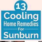 13 Cooling Home Remedies For Sunburn