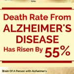 Death Rate From Alzheimer's Disease Has Risen By 55%