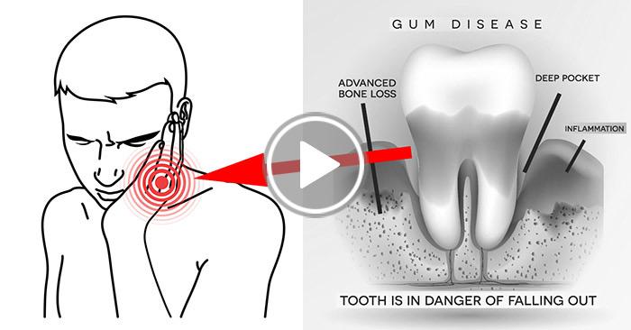 natural gum health video