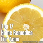 Top 17 Home Remedies for Acne