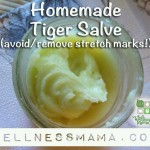 Homemade And Natural Stretch Marks Cream