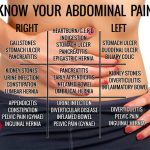 Know Your Abdominal Pain (Chart)