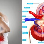 15 Symptoms of Kidney Disease That You Must Know – And What You Should Do About It
