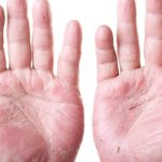 Top 10 Home Remedies For Eczema, Dermatitis And Itchy Skin