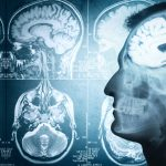 Study Finds Lack Of Sleep May Lead To Brain Shrinkage